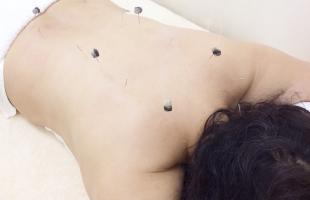 灸頭鍼画像1
