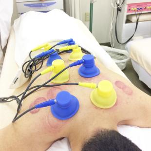 干渉波電気治療